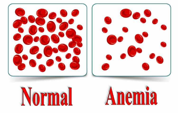 What-Is-Anemia