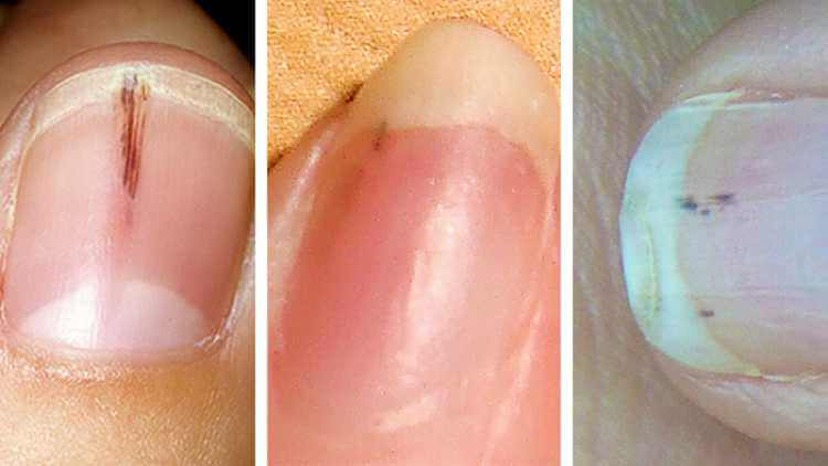 hemorrhages-nail