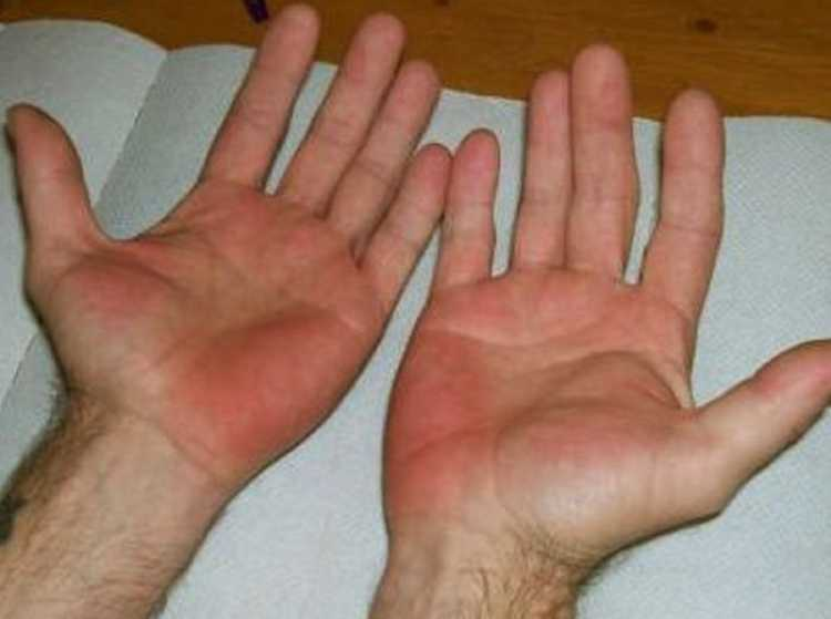 red-palms