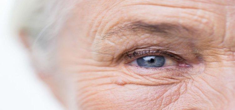 ارتباط آلزایمر و بیماریهای مزمن چشم