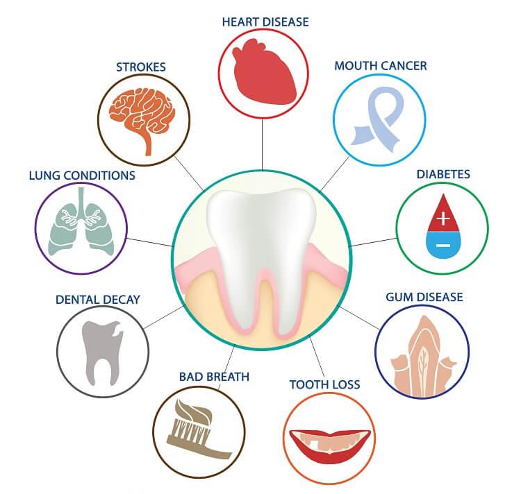 بیماری های مرتبط با دندان خراب