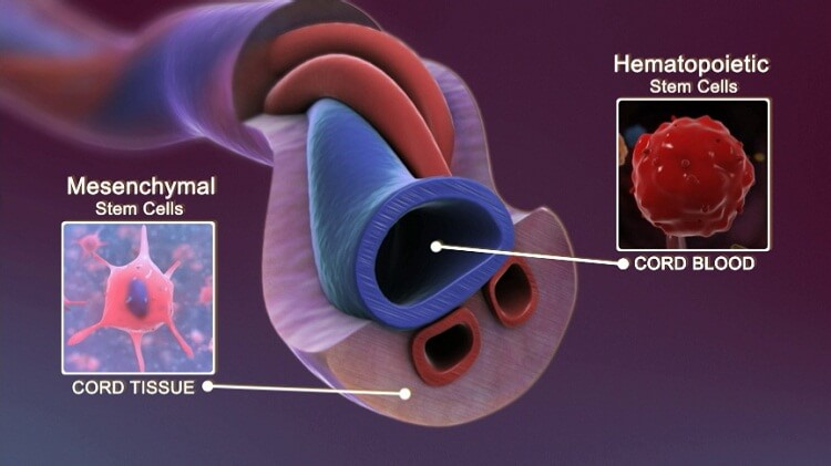 سلول بنیادی بند ناف