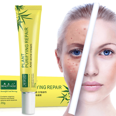 Screenshot 2019 11 09 US 1 96 20 OFF 20g Acne Scar Removal Cream Face Skin Care Spots Blemish Marks Treatment Face Care W...