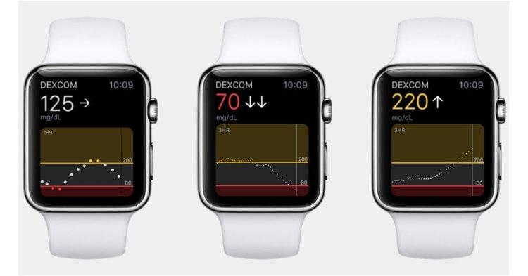 Apple Watch blood sugar measurement