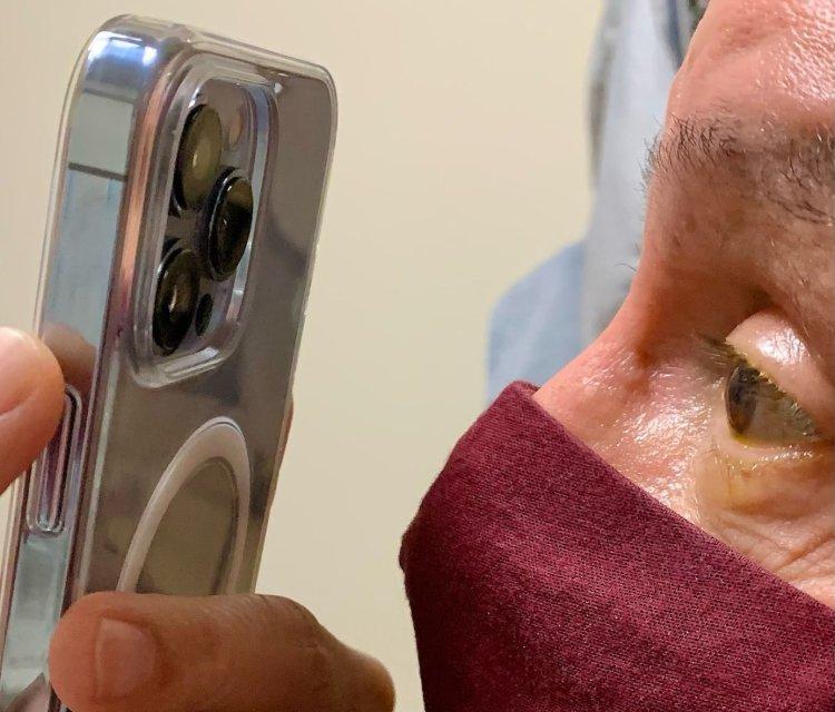 پزشکان میتوانند با حالت دوربین ماکرو آیفون 13 پرو سلامت چشمان افراد را بررسی کنند